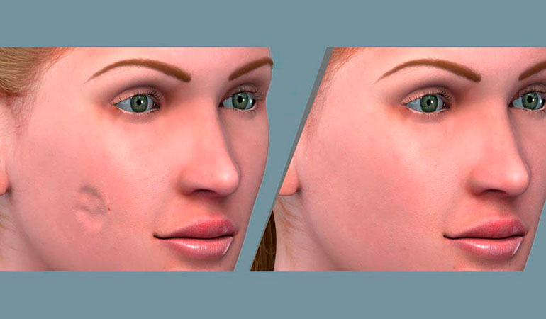 Planejamento cirúrgico em 3D